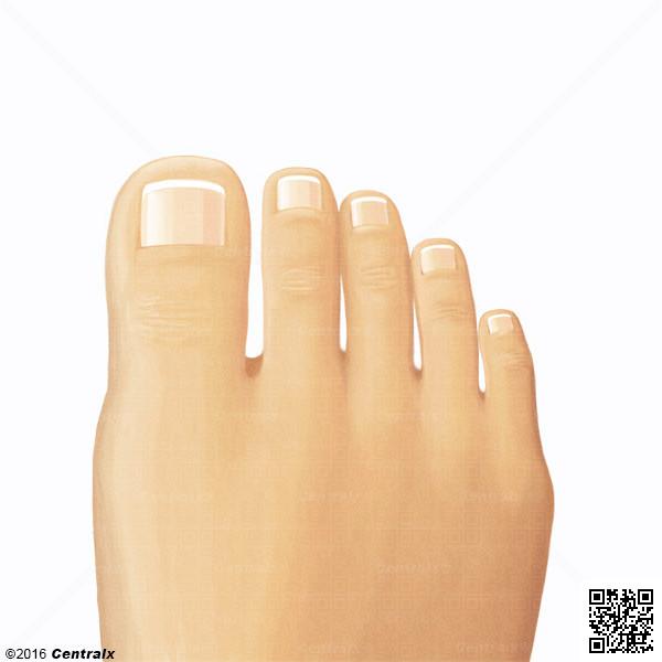 Dedos del Pie - Atlas de Anatomía del Cuerpo Humano - Centralx