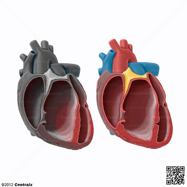 Tabiques Cardíacos