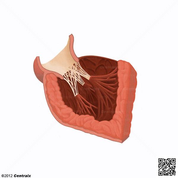 Músculos Papilares