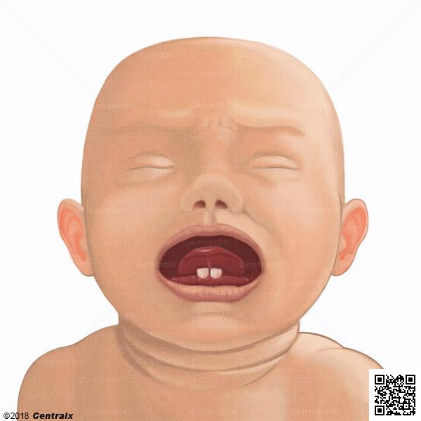 Dientes Neonatales