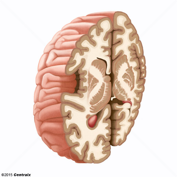Cápsula Interna - Atlas de Anatomía del Cuerpo Humano - Centralx