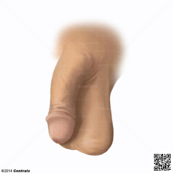 Genitales Masculinos