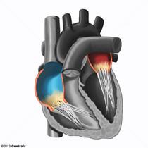 Atrios Cardíacos