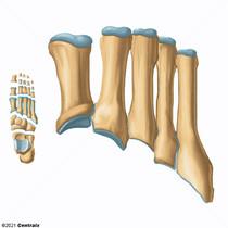 Huesos Metatarsianos