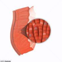Miocitos Cardíacos