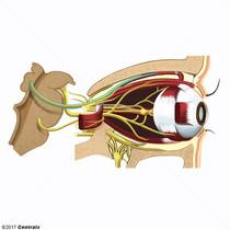 Nervio Troclear