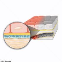 Membrana Basal